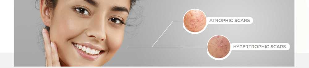 medium resolution of scar removal with the sciton lasers
