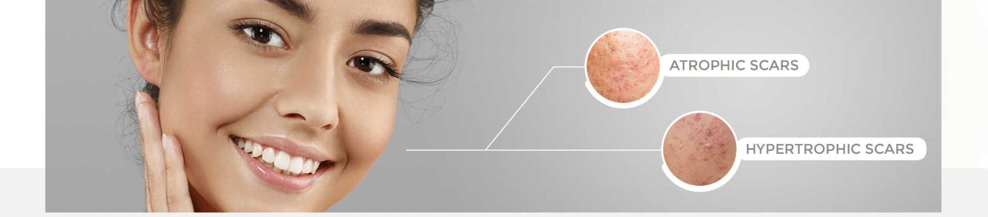 hight resolution of scar removal with the sciton lasers