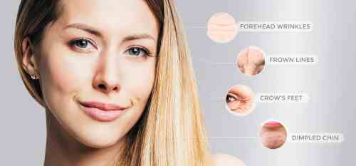 small resolution of montreal botox clinics