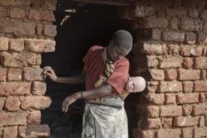 Ébano y marfil: la persecución del albinismo en África