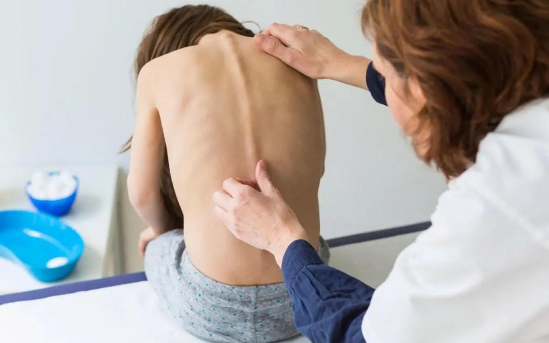 Risk Factors in the Progression of Scoliosis - El Paso Chiropractor