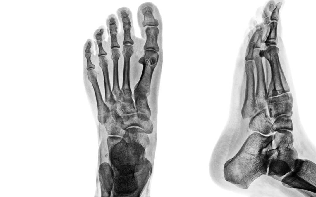 Ankle & Foot Diagnostic Imaging Arthritis & Trauma II| El Paso, TX.