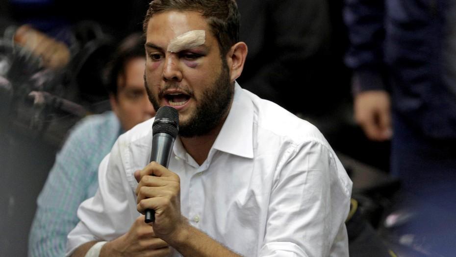 La reacción de la Familia de diputado venezolano retenido por supuesto atentado