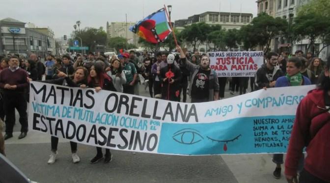 Piñera sigue: profesor Matías Orellana sufre pérdida total de uno de sus ojos