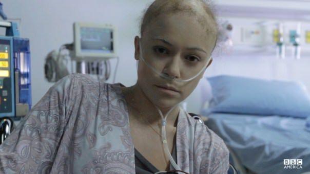 Orphan Black 2x03: Jennifer Fitzsimmons es un nuevo clon, el primero en mostrar los síntomas de la enfermedad que la mató.