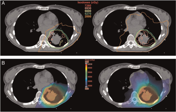 stage iii nonsmall cell lung cancer