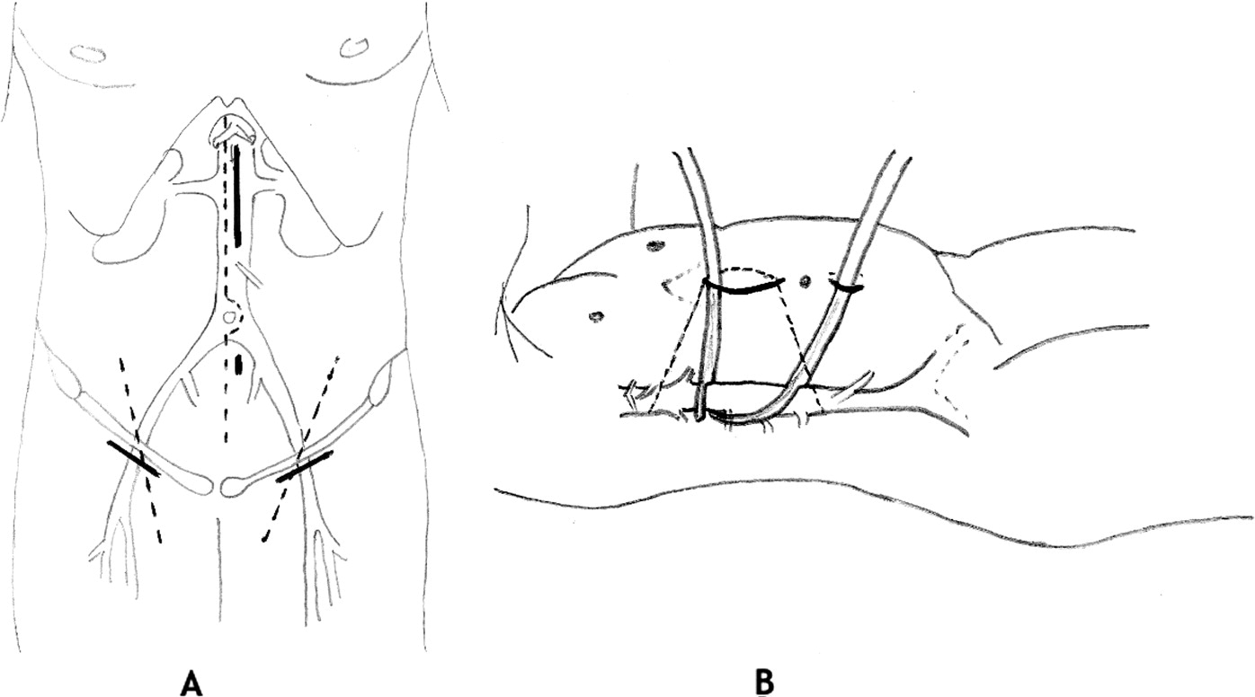 A minimally invasive approach for aortobifemoral bypass