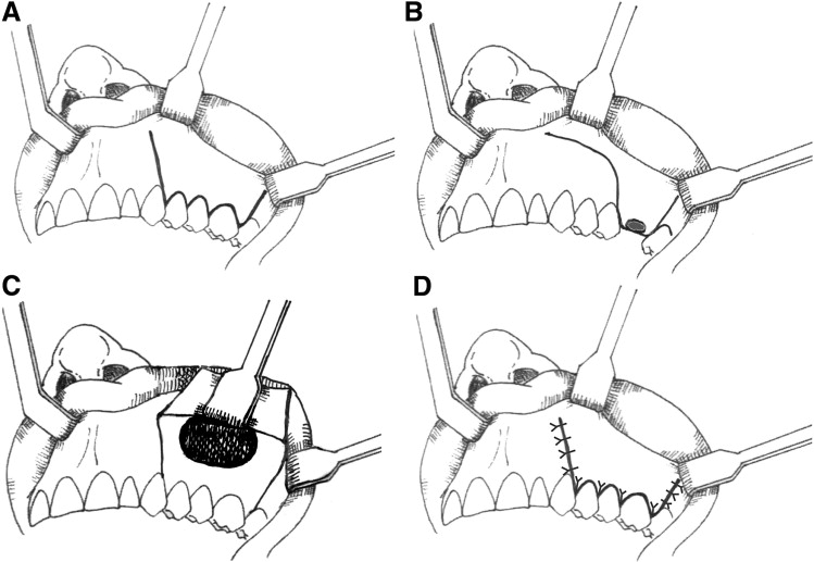 Caldwell-Luc Operation Without Inferior Meatal Antrostomy