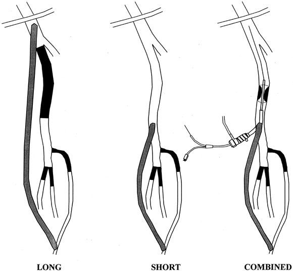 Intraoperative superficial femoral artery balloon