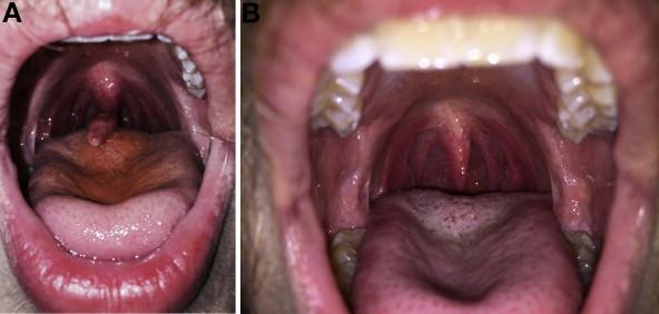Elongated Uvula After Esophagogastroduodenoscopy ...