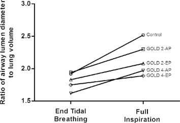 Association Between Airway Caliber Changes With Lung