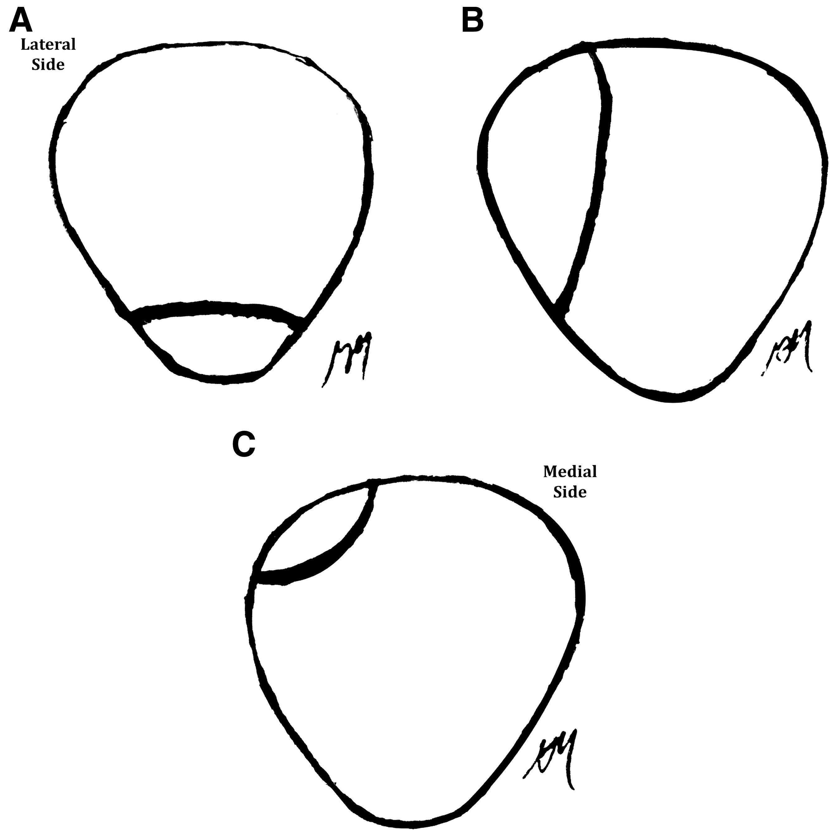 Clinical Outcome of Arthroscopic Lateral Retinacular