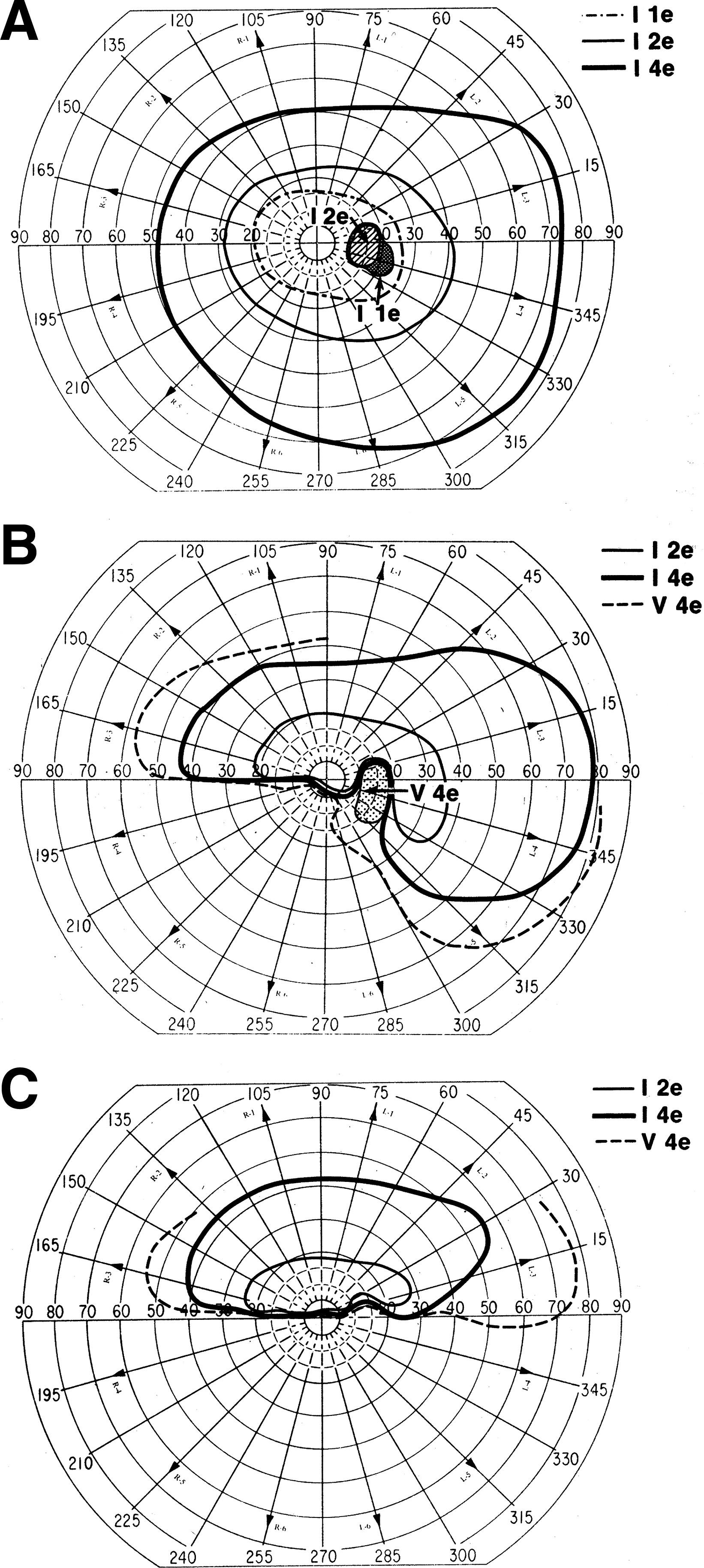 Incipient Nonarteritic Anterior Ischemic Optic Neuropathy