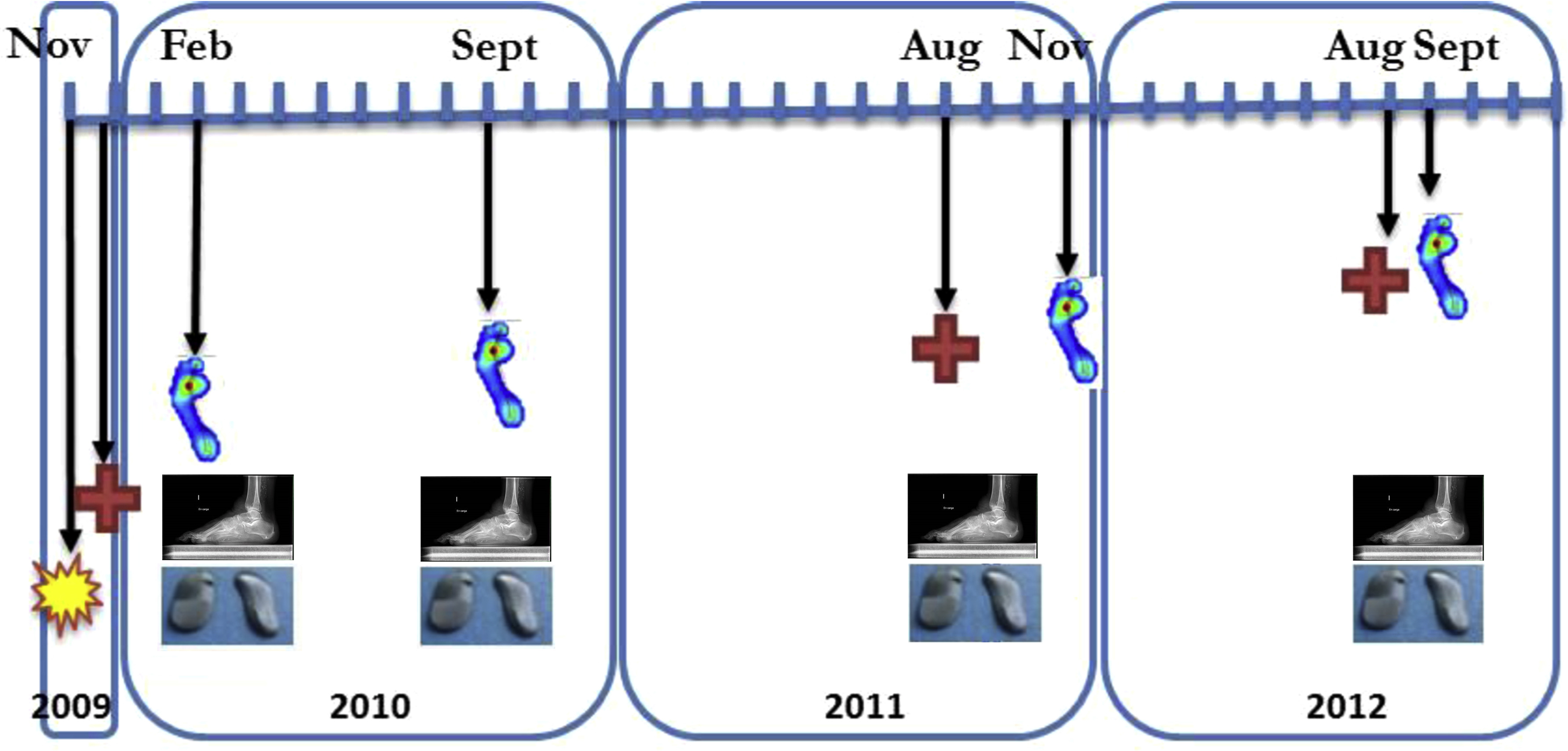 An Evaluation of Surgical Functional Reconstruction of the Foot Using Kinetic and Kinematic Systems: A Case Report - The Journal of Foot and Ankle ...