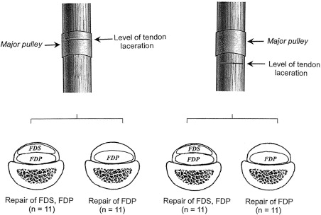 Effects of superficialis tendon repairs on lacerated