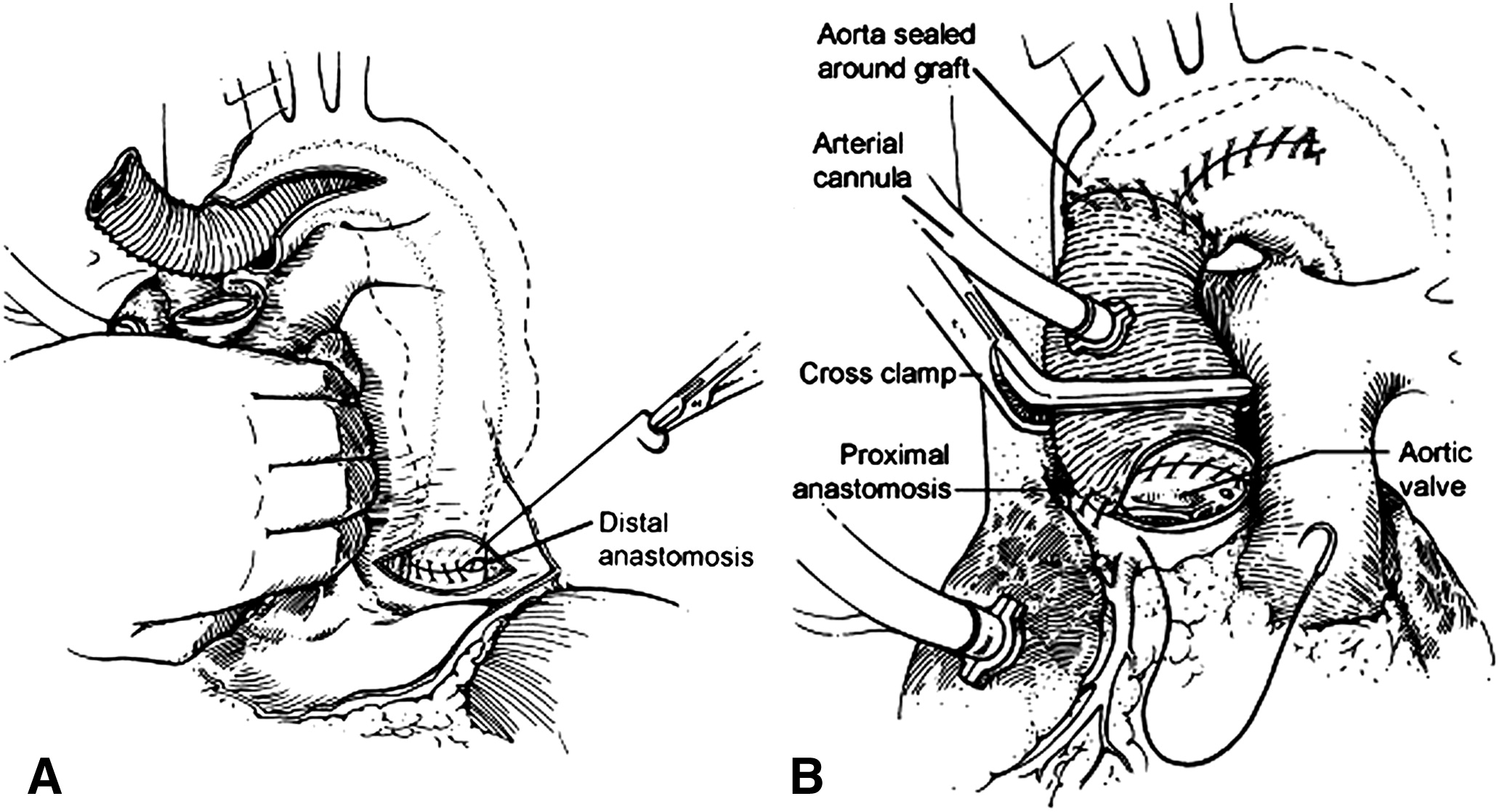 Evolution in the management of the total thoracic aorta