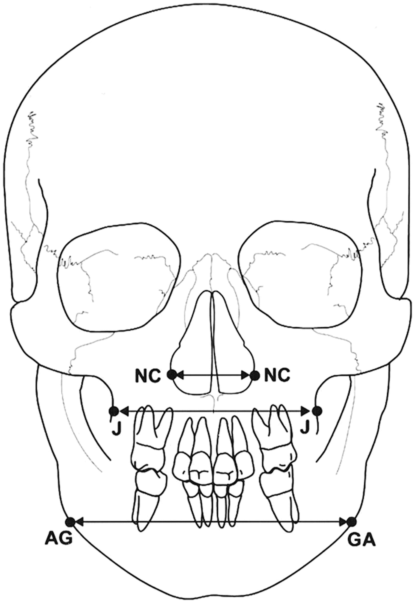 Palatal displacement of canines and maxillary skeletal