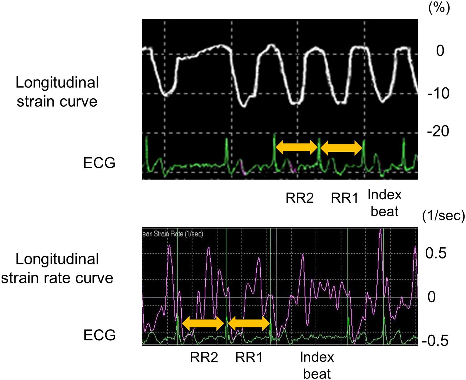 Index Beat Assessment Of Left Ventricular Systolic And