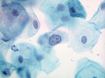 Terminology in cervical cytology - Current Diagnostic ...