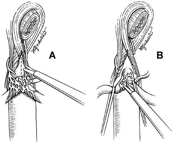 Laparoscopic release of celiac artery compression syndrome