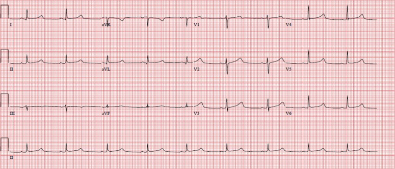 Congenital long QT syndrome: Severe Torsades de pointes provoked by epinephrine in a digenic mutation carrier - Heart & Lung: The Journal of ...