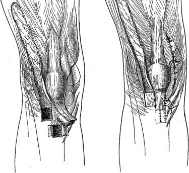 Total knee arthroplasty after Hauser procedure: beware of
