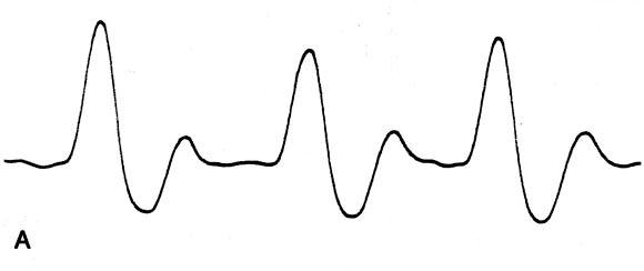 Popliteal vascular compression in a normal population