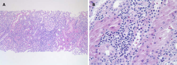 The Syndrome of Tubulointerstitial Nephritis With Uveitis (TINU) - American Journal of Kidney Diseases