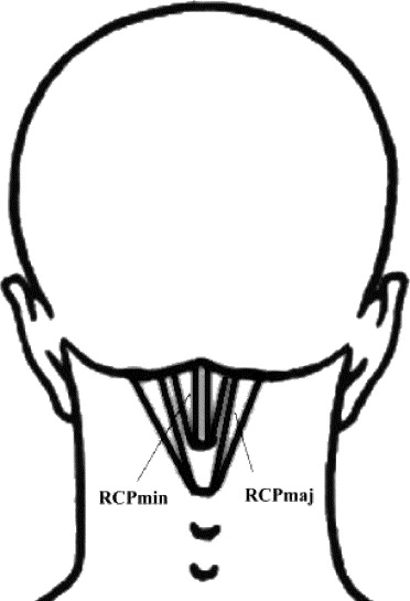 Myofascial trigger points in the suboccipital muscles in