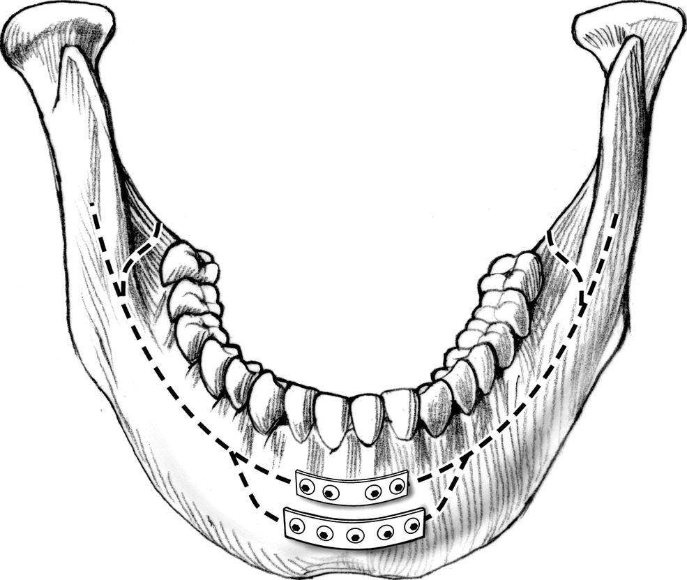 Management of symphyseal and parasymphyseal mandibular