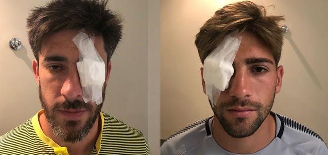 Asi quedaron los jugadores de Boca  Pablo Perez y Gonzalo Lamardo tras las agresiones