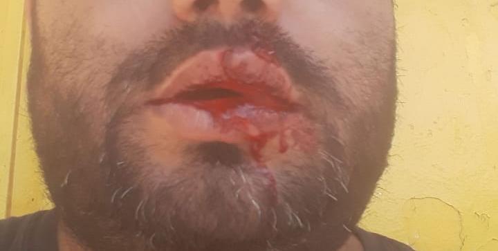 Tafi Viejo: Delincuentes le dispararon en la cara a un comerciante