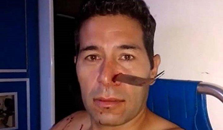 """"""" Salvaje agresion """" : Vio a su exnovia entrar a un hotel con un hombre y lo atacó clavándole un cuchillo en la nariz"""