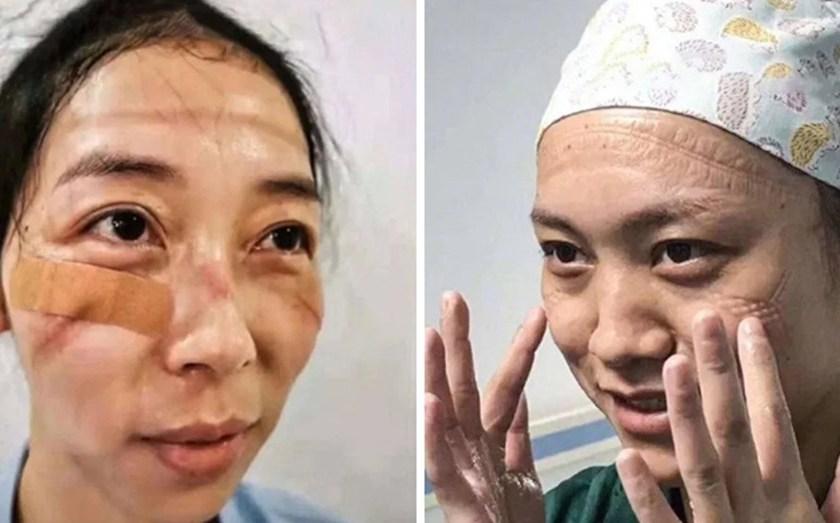 CORONAVIRUS: Las marcas en la cara de las enfermeras chinas que luchan contra la epidemia en Wuhan