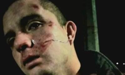brutal golpiza de a hombre en Quintero c 505b9