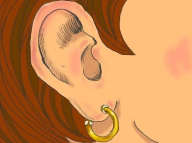 Si tienes esta marca en la oreja, podría ser una señal de riesgo de enfermedad cardíaca
