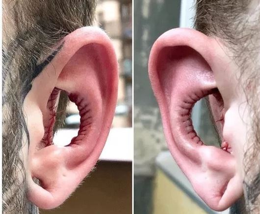 cortar las orejas