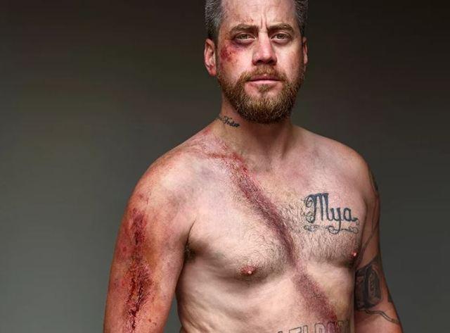 La exposición que convierte las heridas del cinturón de seguridad en insignias de honor