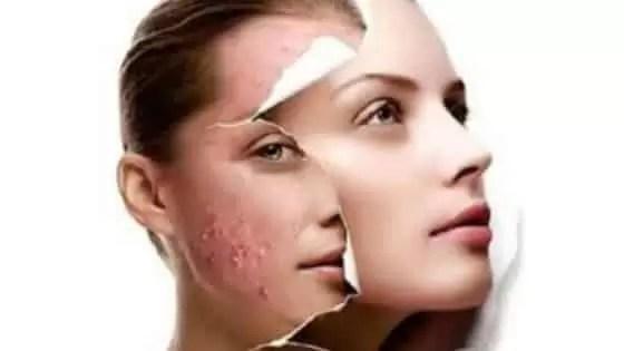 Tratamento para Acne com Vitamina C