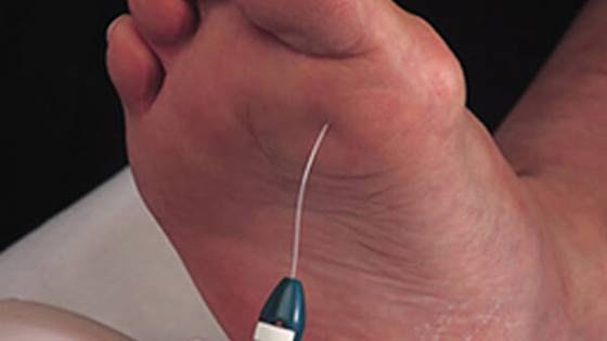 O que causa o pé diabético inchado