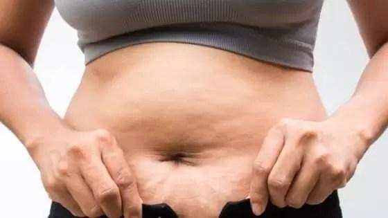 Como Acabar com a Celulite Após a Gravidez