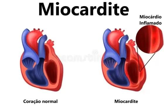 Insuficiência Cardíaca Congestiva Causas - Miocardite-min