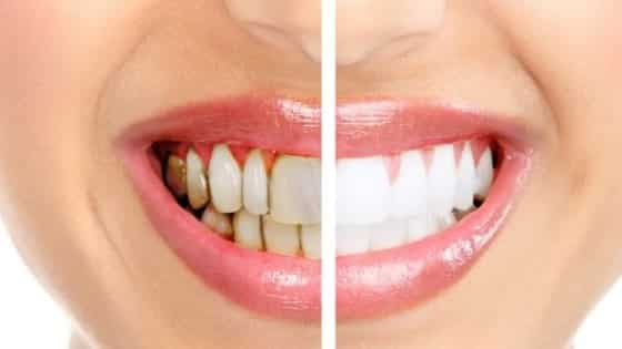 Doença periodontal, como evitá-la e preveni-la