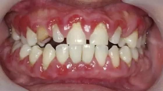 Um dos primeiros sinais de gengivite é que suas gengivas sangram quando você ou escova ou usa fio dental.