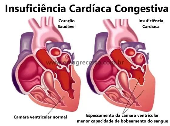 Insuficiência Cardíaca Congestiva Causas