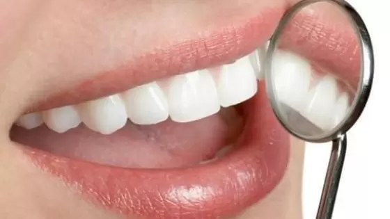 Como Evitar a Placa Bacteriana e Tártaro nos Dentes