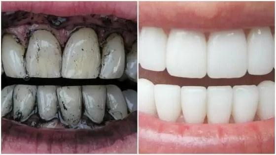 Como Tirar Tártaro nos Dentes - carvão ativado
