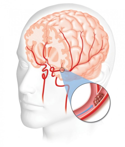 small resolution of real time imaging of neurological damage may give physicians clearer picture of stroke damage