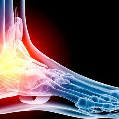 Joints Of The Foot Diagram Mercury Optimax Wiring Common Running Injuries: Pain
