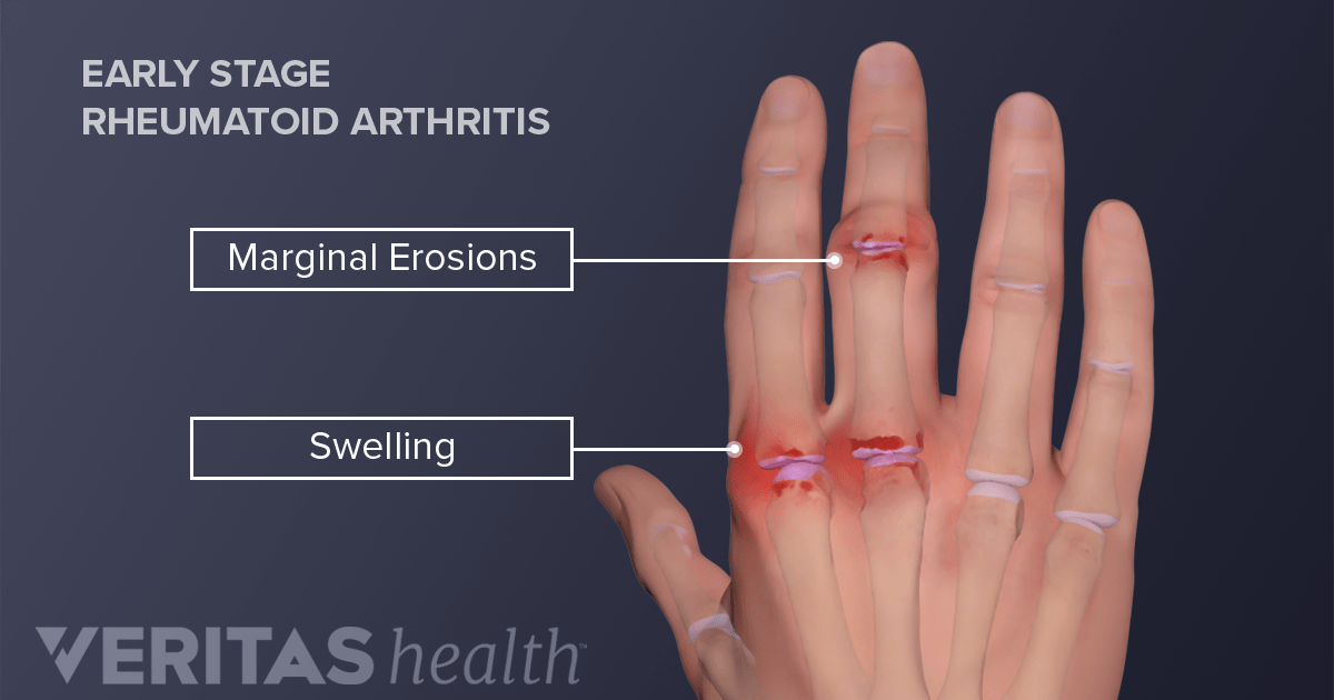 Hand Rheumatoid Arthritis (RA) Signs and Symptoms